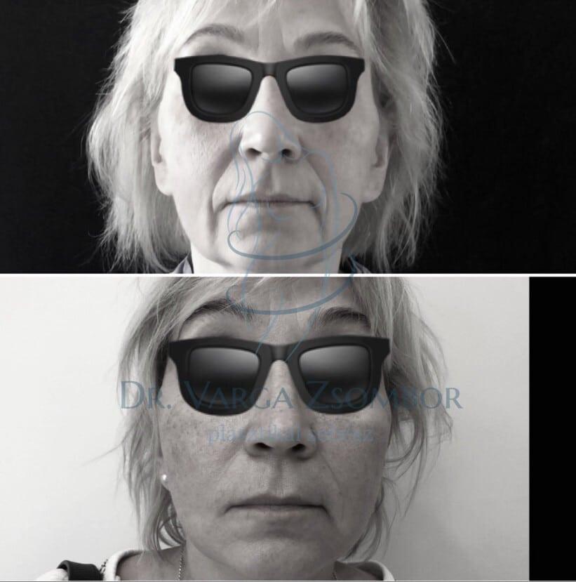 arcplasztika műtét előtte-utána