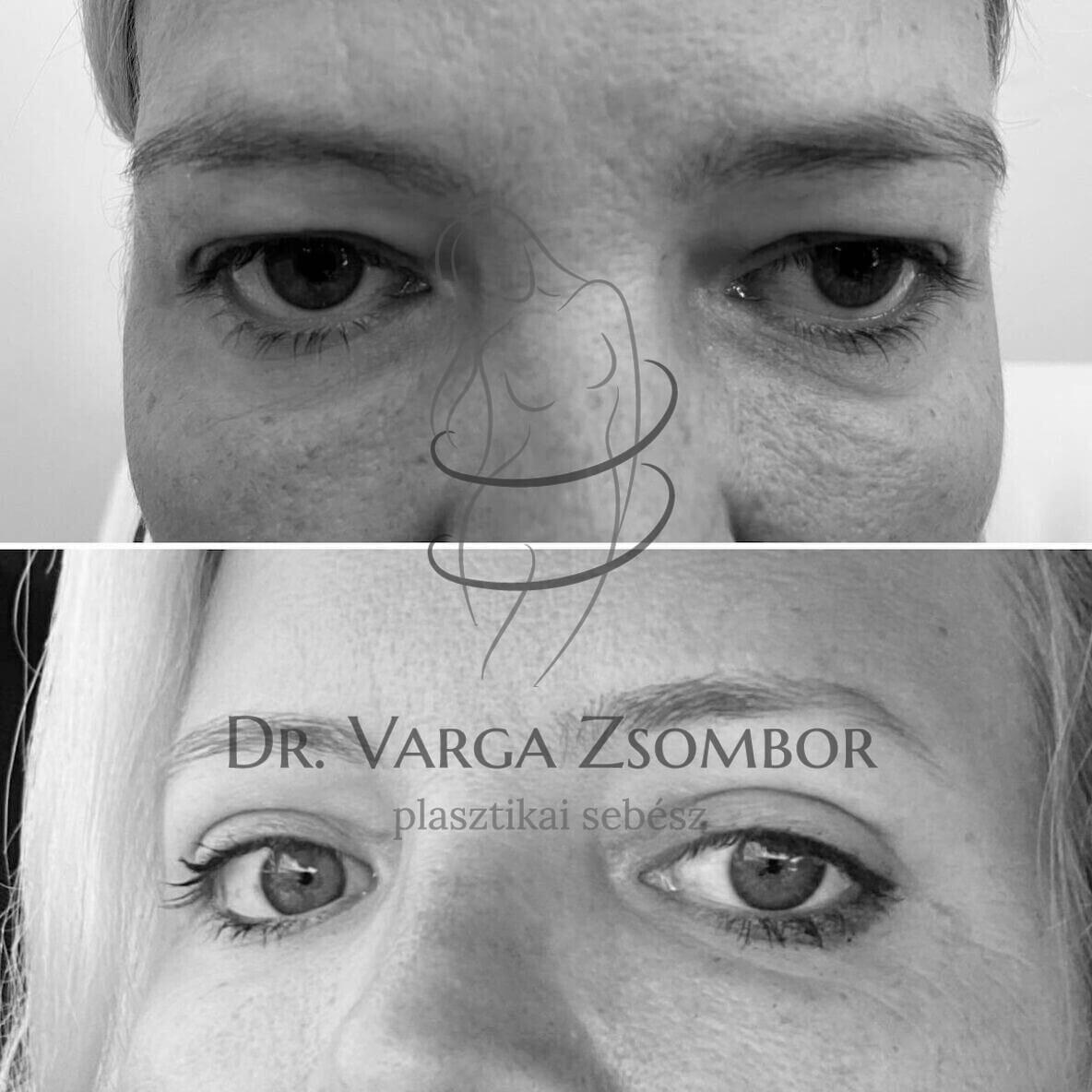 felső szemhéjplasztika előtte-utána